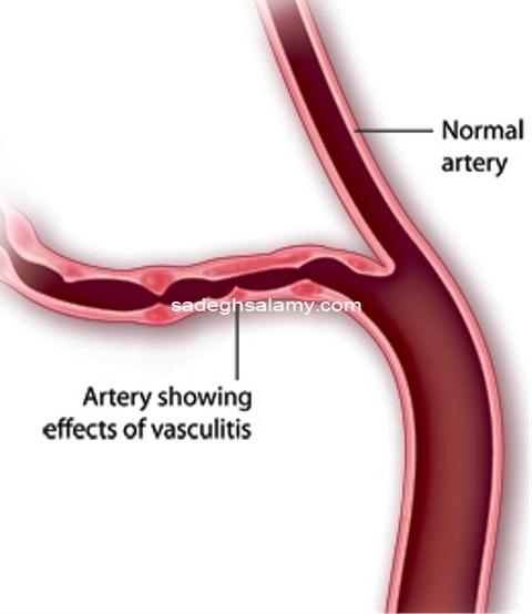 تاثير التهاب بر عروق خونی