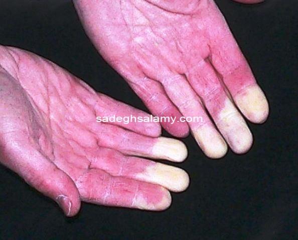 بیماری رينود