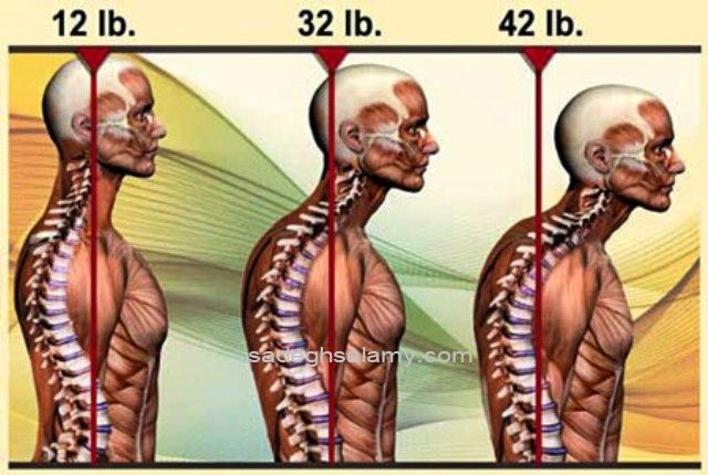 فشار بر گردن